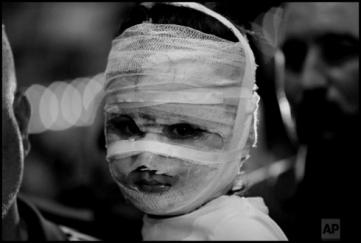 baby burned vaseline bandages bw 490